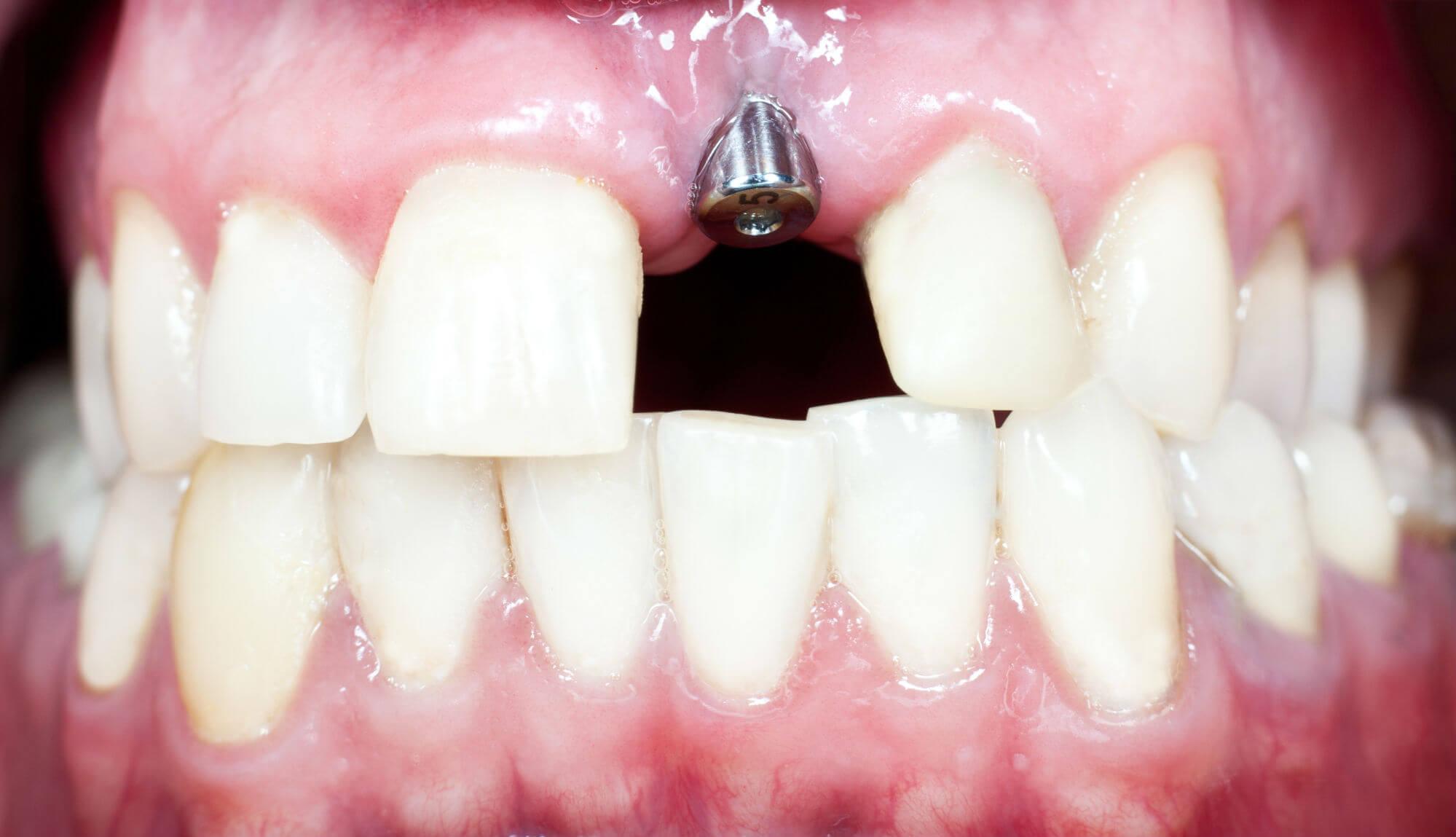 смешные фото имплатанцыя зубов груза пределах