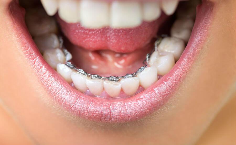 Лингвальные брекеты на зубах